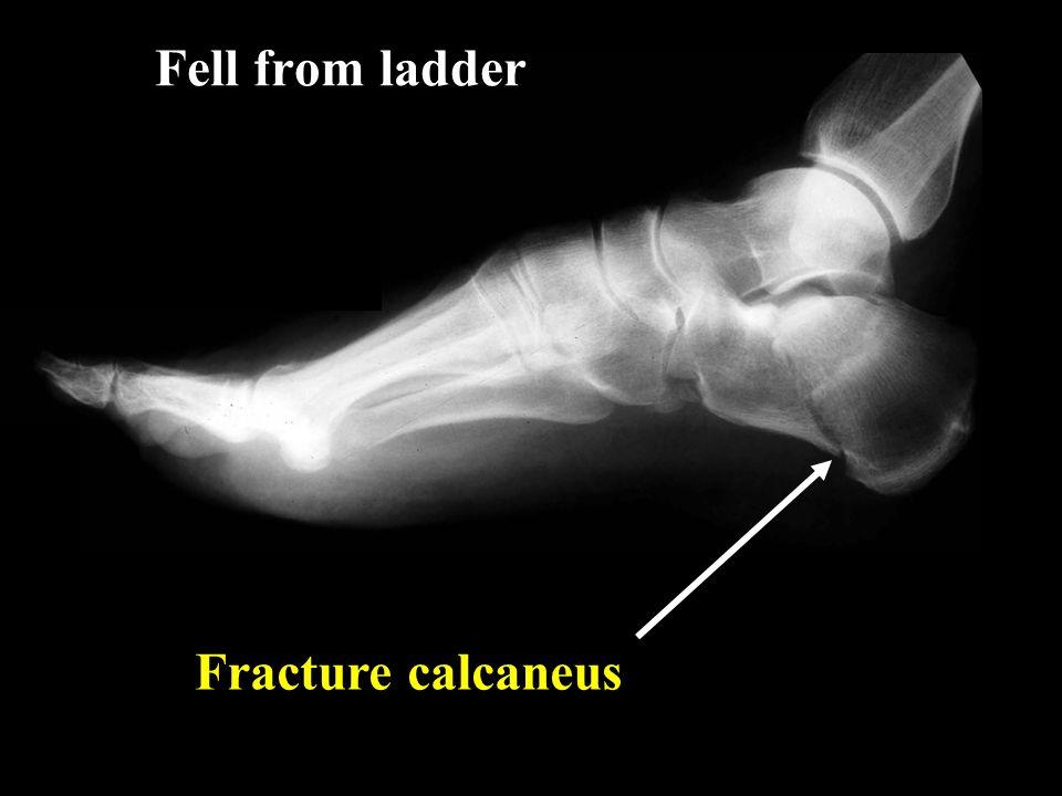 Fell from ladder Fracture calcaneus