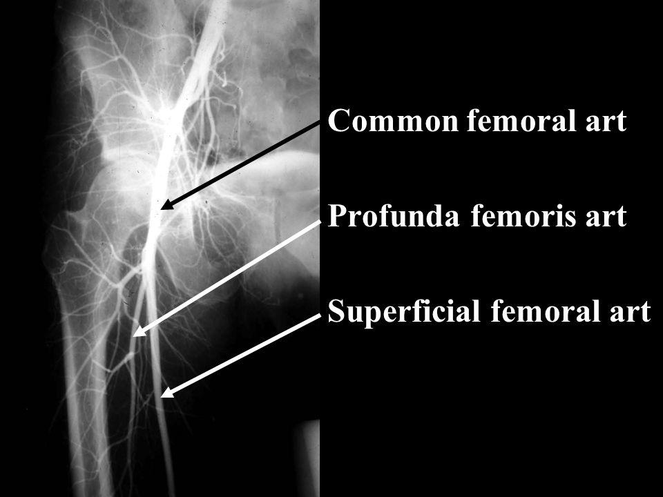 Common femoral art Profunda femoris art Superficial femoral art