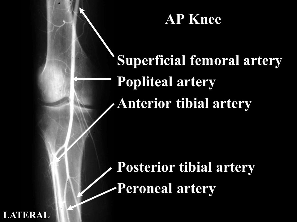 AP Knee Superficial femoral artery Popliteal artery Anterior tibial artery Posterior tibial artery Peroneal artery LATERAL