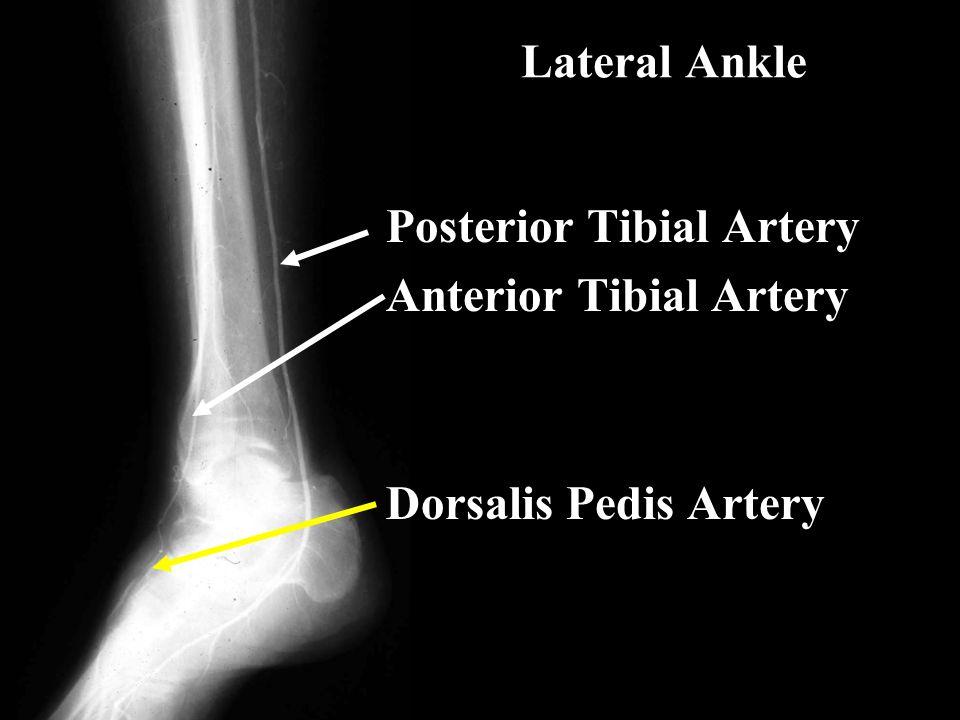 Lateral Ankle Posterior Tibial Artery Anterior Tibial Artery Dorsalis Pedis Artery