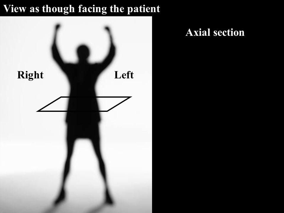 Axial section LeftRight View as though facing the patient