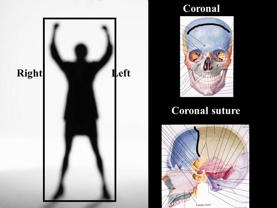 Coronal LeftRight Coronal suture