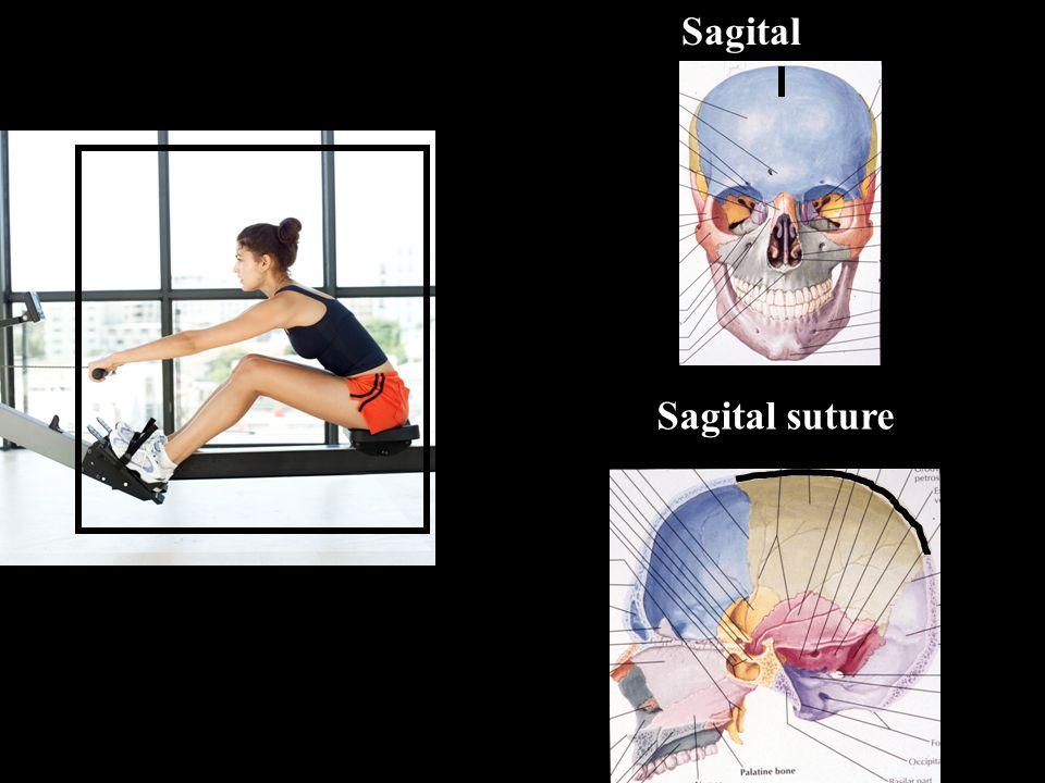 Sagital Sagital suture