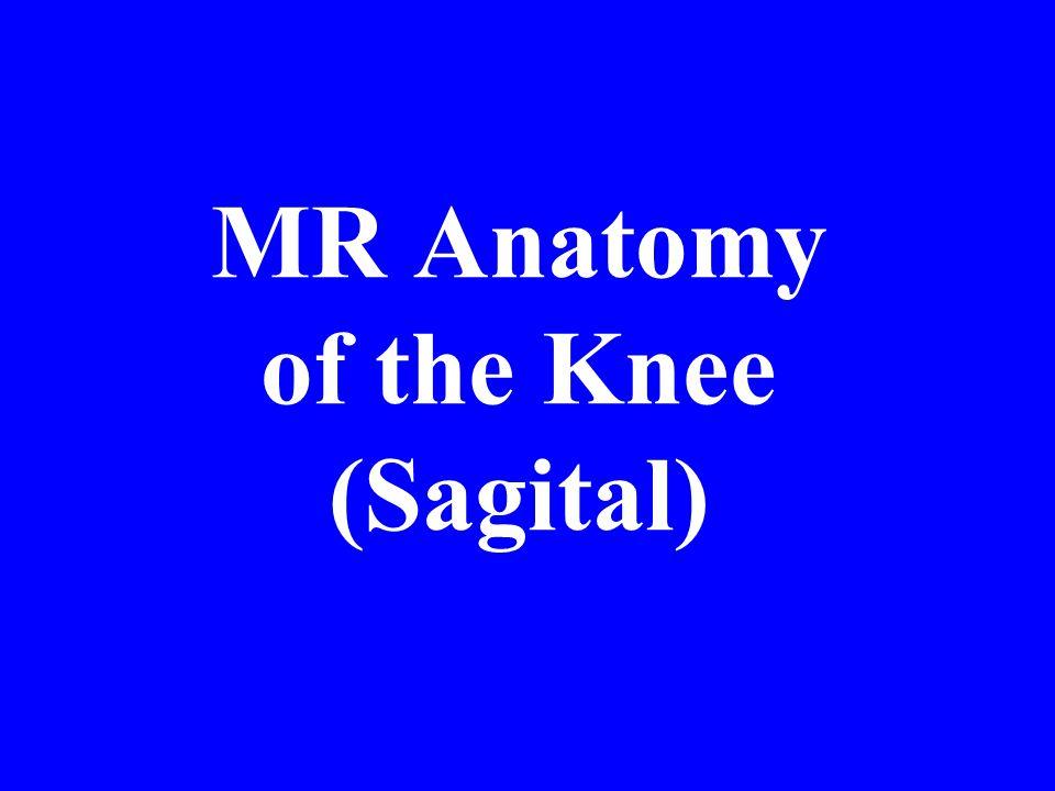 MR Anatomy of the Knee (Sagital)
