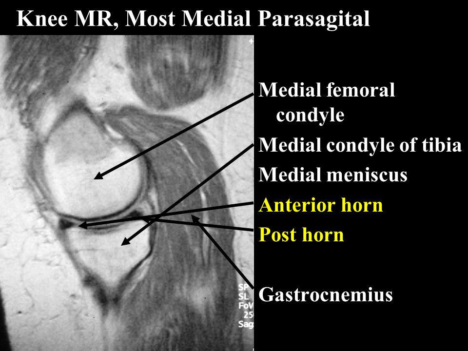 Knee MR, Most Medial Parasagital Medial femoral condyle Medial condyle of tibia Medial meniscus Anterior horn Post horn Gastrocnemius