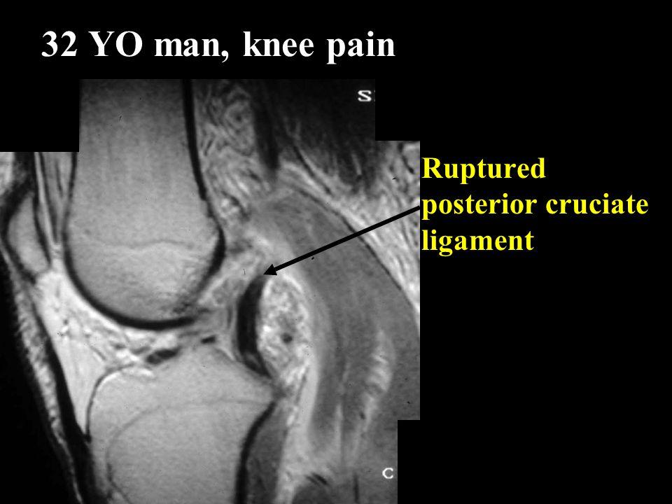 32 YO man, knee pain Ruptured posterior cruciate ligament