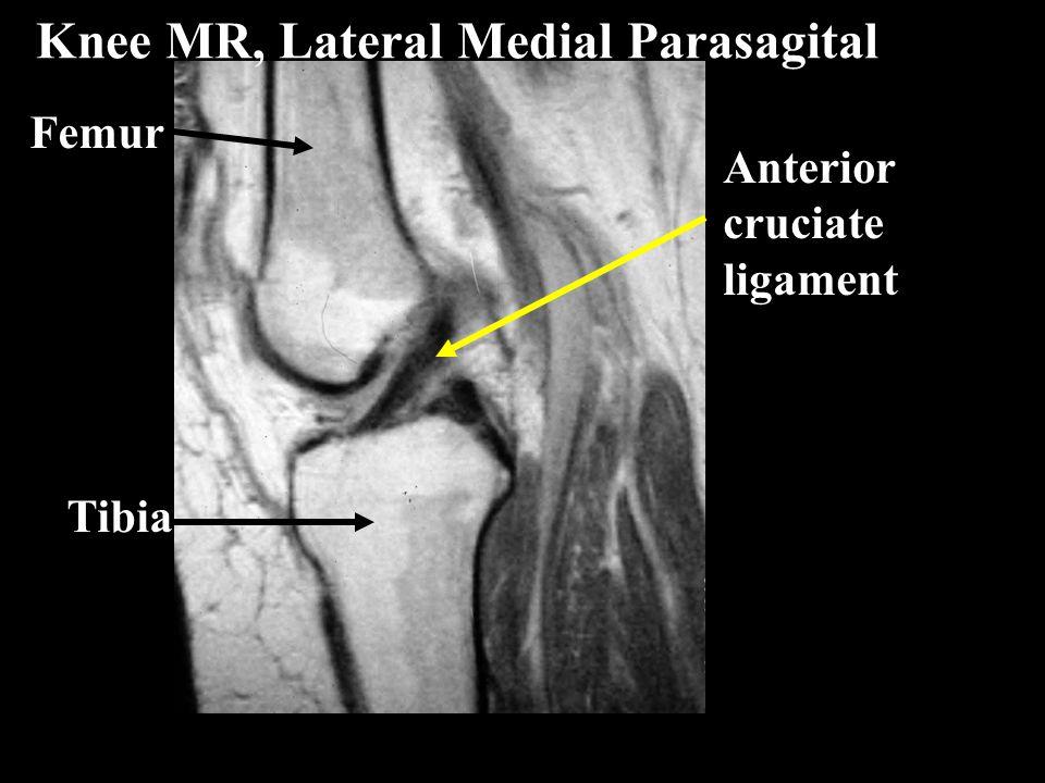 Femur Tibia Anterior cruciate ligament Knee MR, Lateral Medial Parasagital