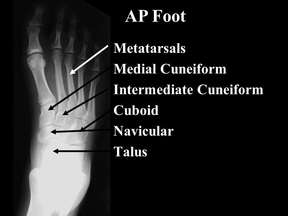Metatarsals Medial Cuneiform Intermediate Cuneiform Cuboid Navicular Talus AP Foot