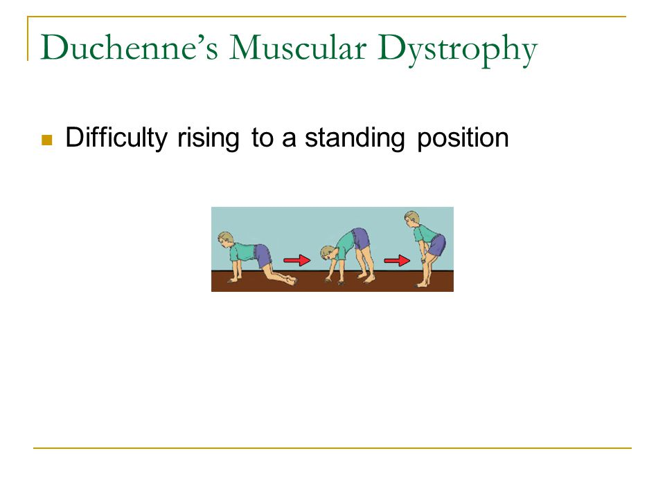 Duchenne's Muscular Dystrophy Difficulty rising to a standing position