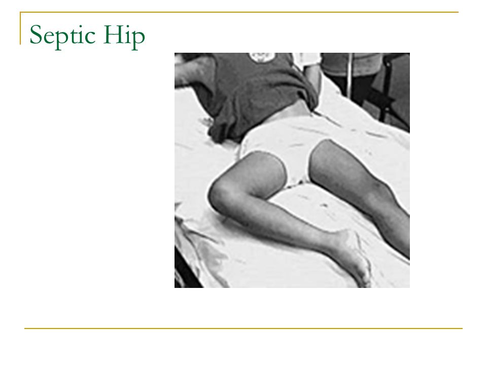 Septic Hip