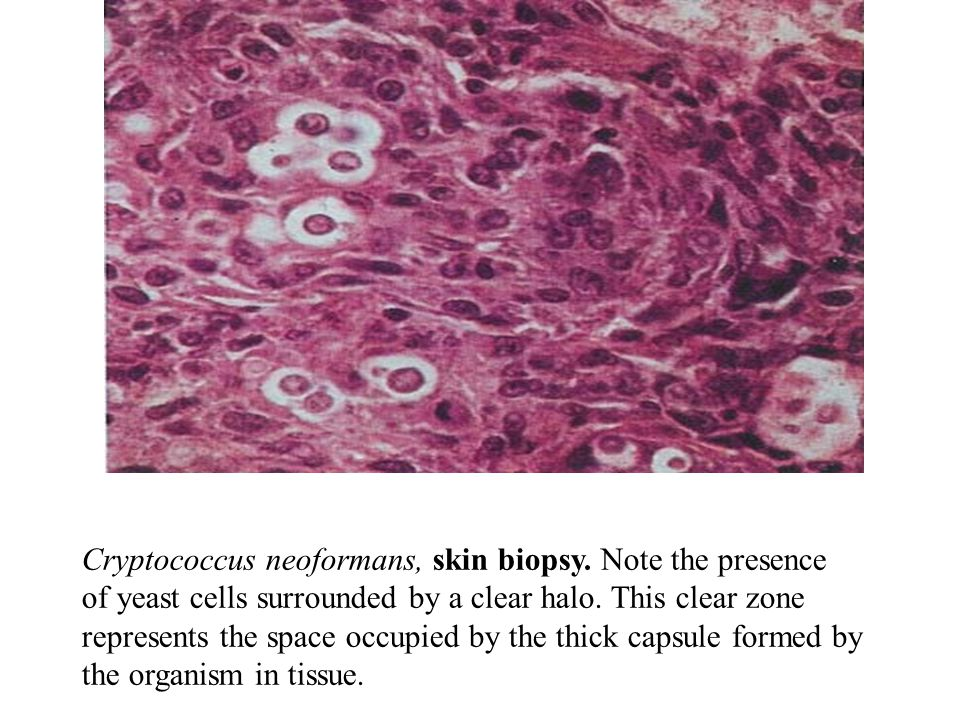 Cryptococcus neoformans, skin biopsy.Note the presence of yeast cells surrounded by a clear halo.