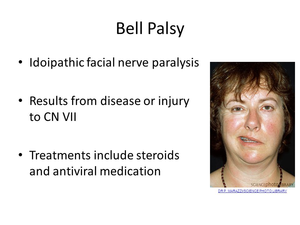 Bell Palsy Idoipathic facial nerve paralysis Results from disease or injury to CN VII Treatments include steroids and antiviral medication DR P.