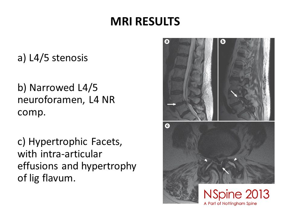 MRI RESULTS a) L4/5 stenosis b) Narrowed L4/5 neuroforamen, L4 NR comp.