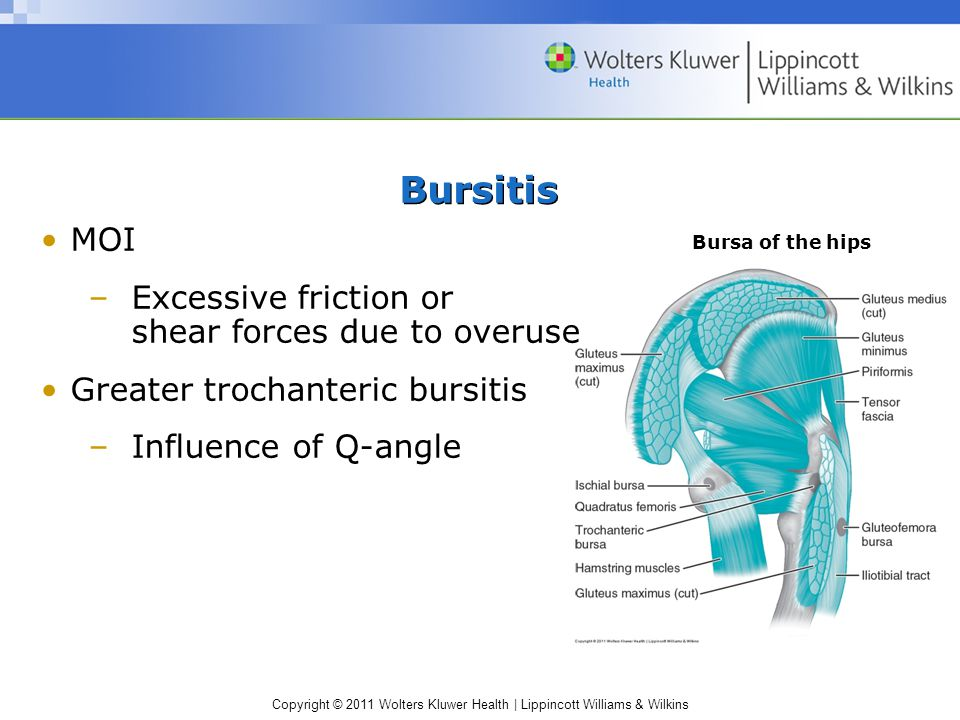 Copyright © 2011 Wolters Kluwer Health | Lippincott Williams & Wilkins Bursitis MOI –Excessive friction or shear forces due to overuse Greater trochan
