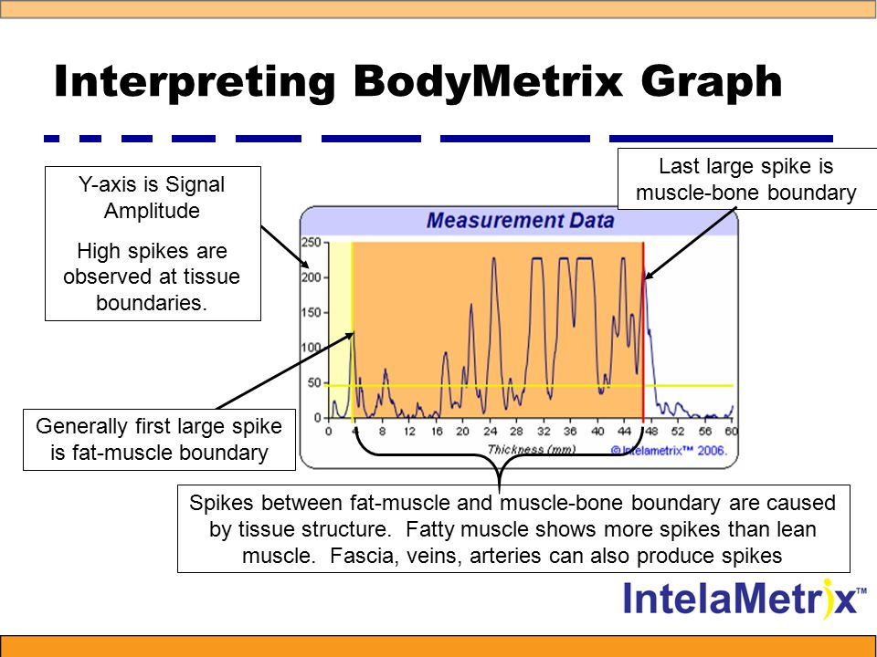 Comparison to X-ray CT 3.8 mm Fat Layer 49 mm Muscle Layer Bicep BodyMetrix Fat 3.6 mm, Muscle 48.0 mm
