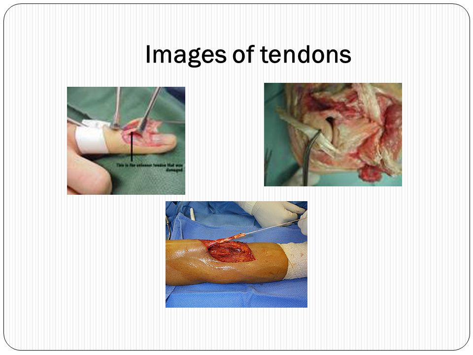 Images of tendons