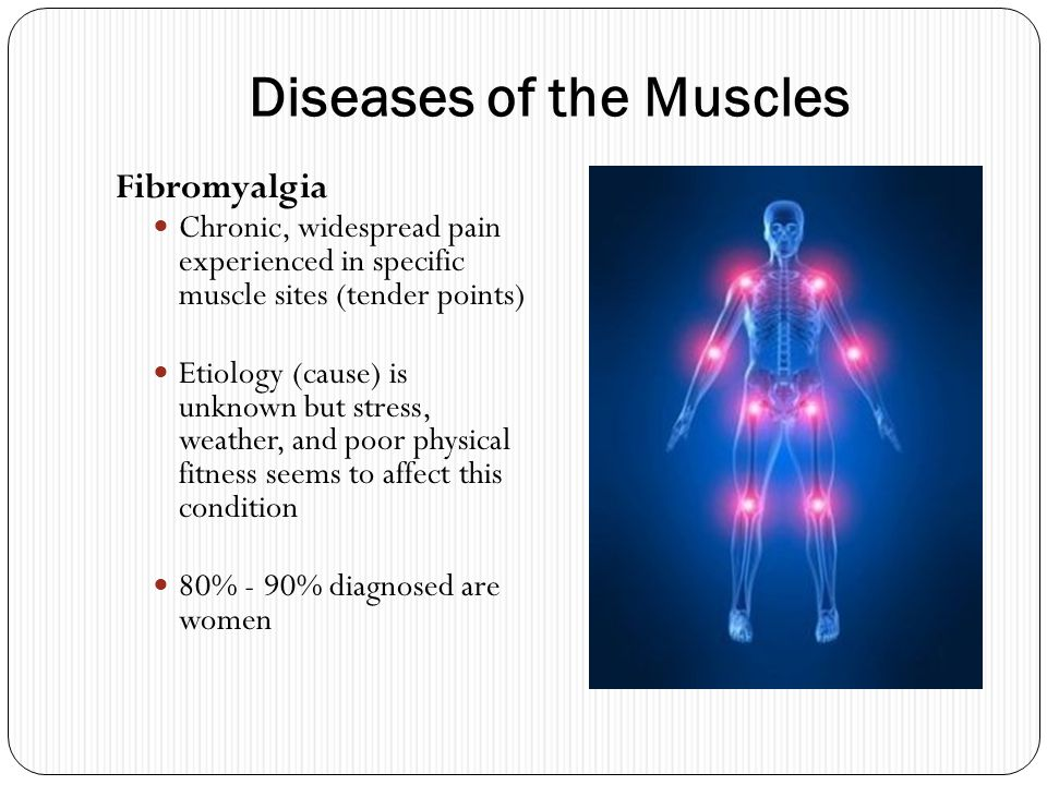 Diseases of the Muscles Fibromyalgia Chronic, widespread pain experienced in specific muscle sites (tender points) Etiology (cause) is unknown but str