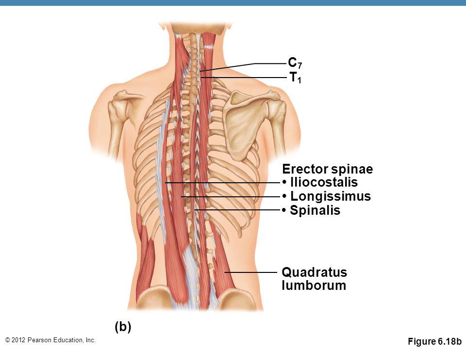 © 2012 Pearson Education, Inc. Figure 6.18b C7C7 T1T1 Erector spinae Iliocostalis Longissimus Spinalis Quadratus Iumborum (b)