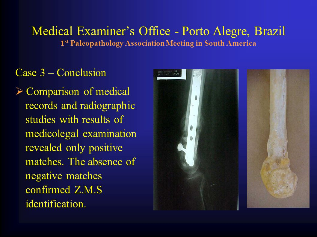 Medical Examiner's Office - Porto Alegre, Brazil 1 st Paleopathology Association Meeting in South America Case 3 – Conclusion  Comparison of medical records and radiographic studies with results of medicolegal examination revealed only positive matches.