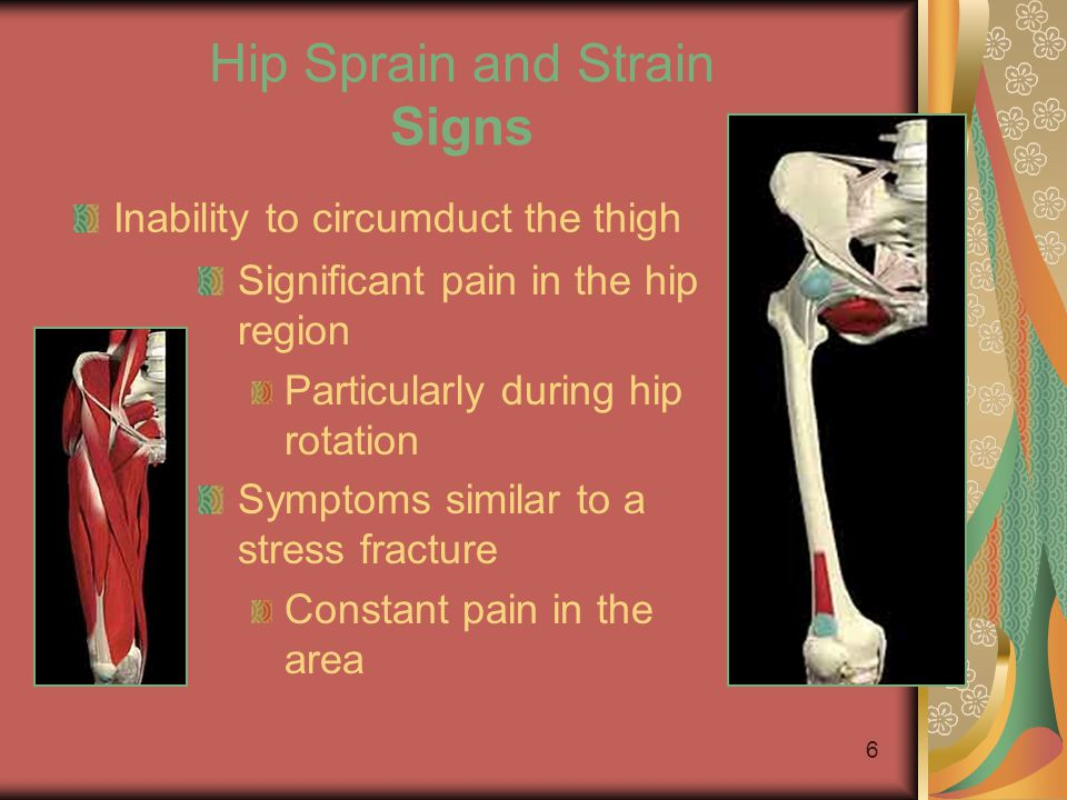 5 Hip Sprain and Strain Causes Strength and flexibility imbalances Often confused with hip subluxation Often presents as a hip sprain or strain If lef