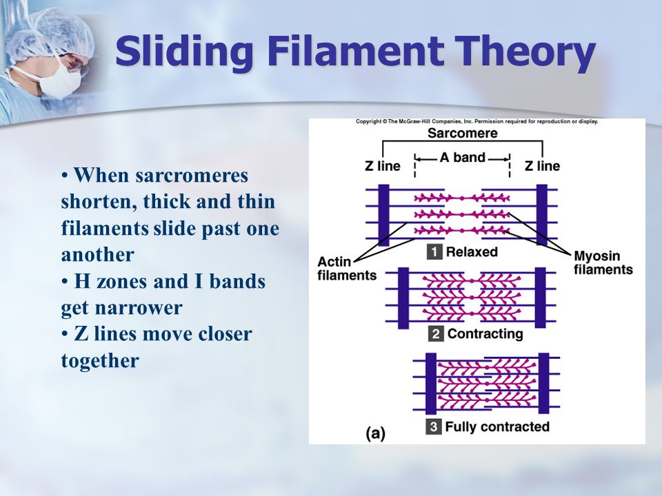 When sarcromeres shorten, thick and thin filaments slide past one another H zones and I bands get narrower Z lines move closer together Sliding Filame