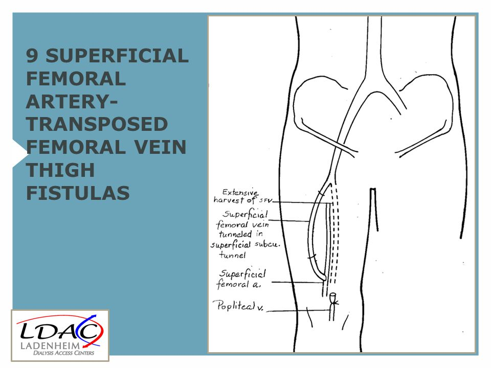 9 SUPERFICIAL FEMORAL ARTERY- TRANSPOSED FEMORAL VEIN THIGH FISTULAS