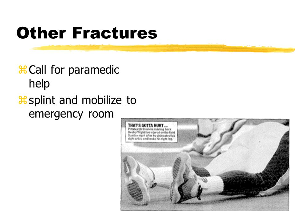 Other Fractures zCall for paramedic help zsplint and mobilize to emergency room