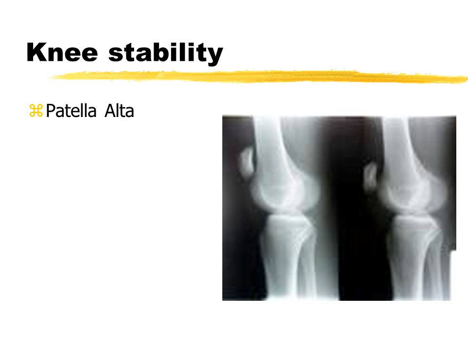 Knee stability zPatellar surface