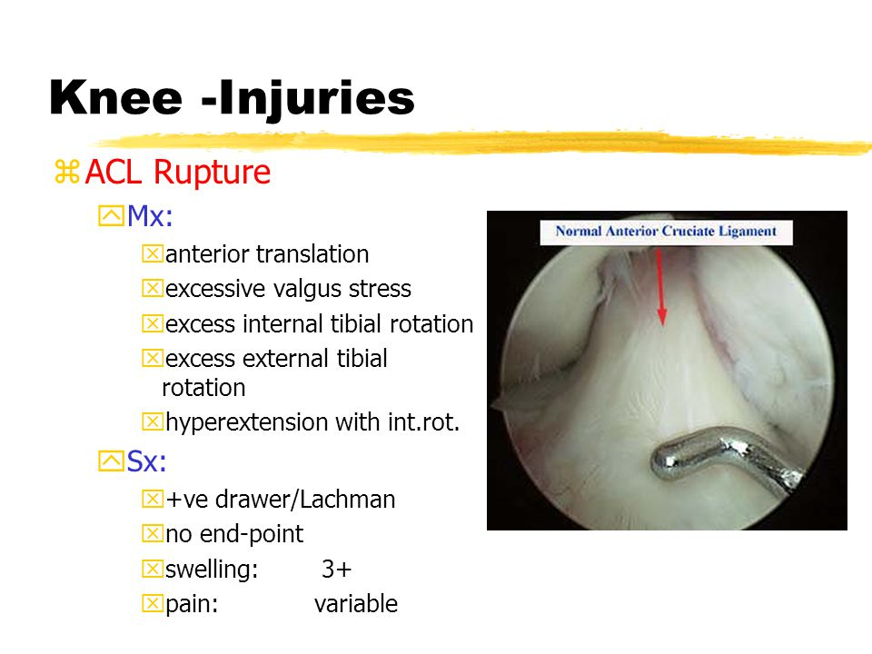 KNEE - Anatomy: cruciates