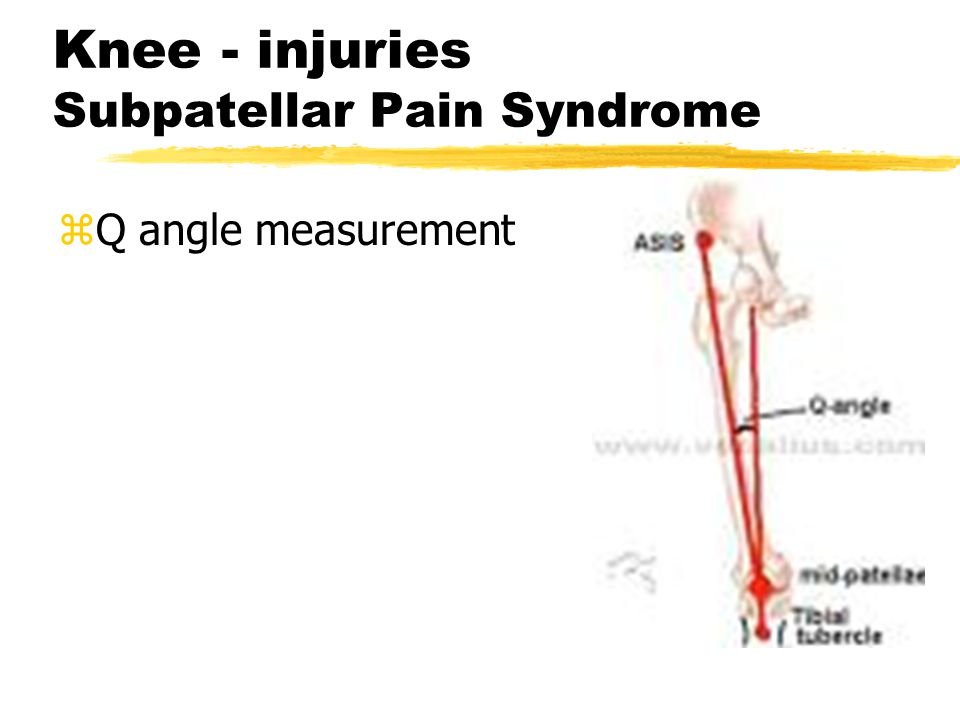 Knee - injuries Subpatellar Pain Syndrome zMx: ylateral tracking of patella zCause: yinsufficient vastus medialis m.