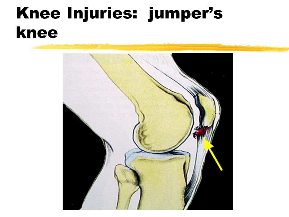 Knee - injuries Jumper's Knee zMx: yeccentric contractile force of quads ymicrotrauma to insertion of quadriceps tendon of infrapatellar ligament.
