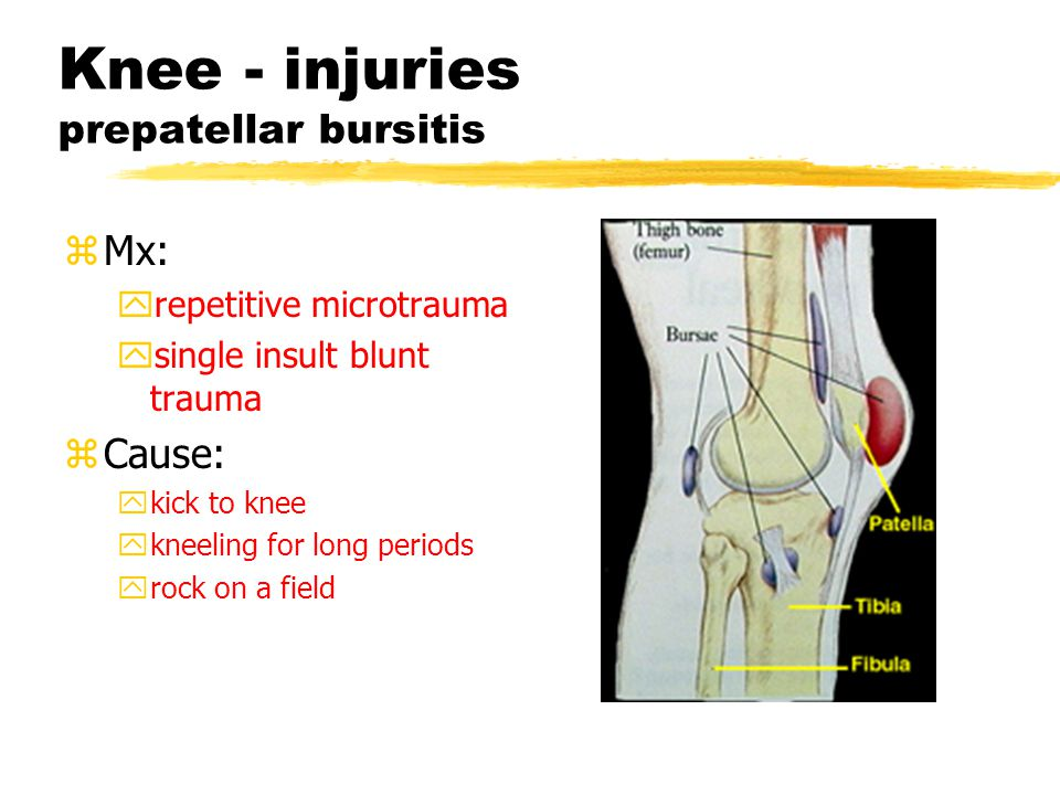 Knee - injuries Tibial tubercle traumatic apophysitis zSx: yPain at Tibial tubercle, exacerbated with exercise ypain with any blunt trauma to Tibial tubercle.