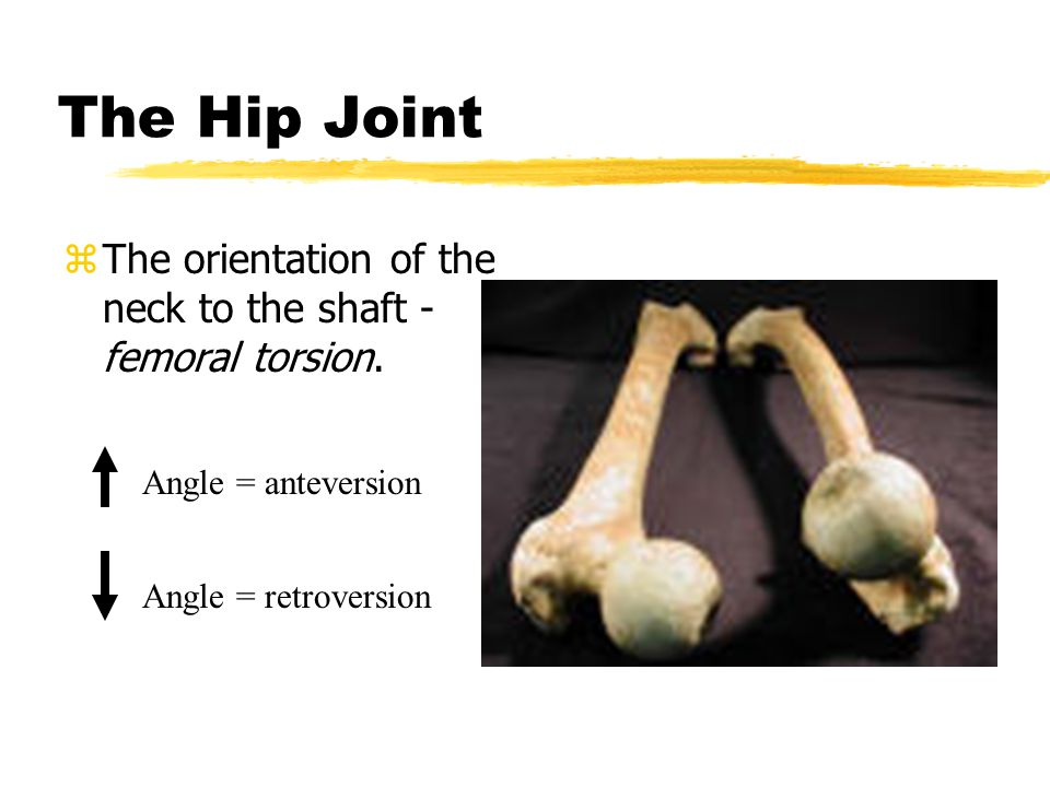 The Hip Joint zThe angle of the neck to the shaft - Angle = coxa valgus Angle = coxa varus