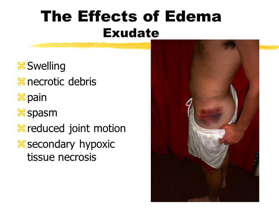 The Effects of Edema- transudate zSwelling znecrotic debris zpain zspasm zreduced joint motion zsecondary hypoxic tissue necrosis