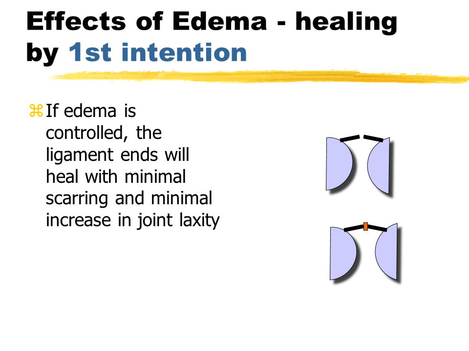 Effects of Edema -healing by 2nd intention zSwelling pushes the ligament ends away from each other.