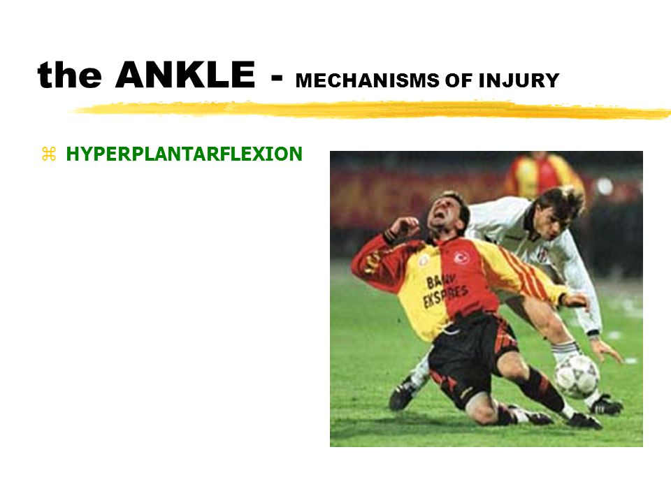 the ANKLE - MECHANISMS OF INJURY zHYPERDORSIFLEXION