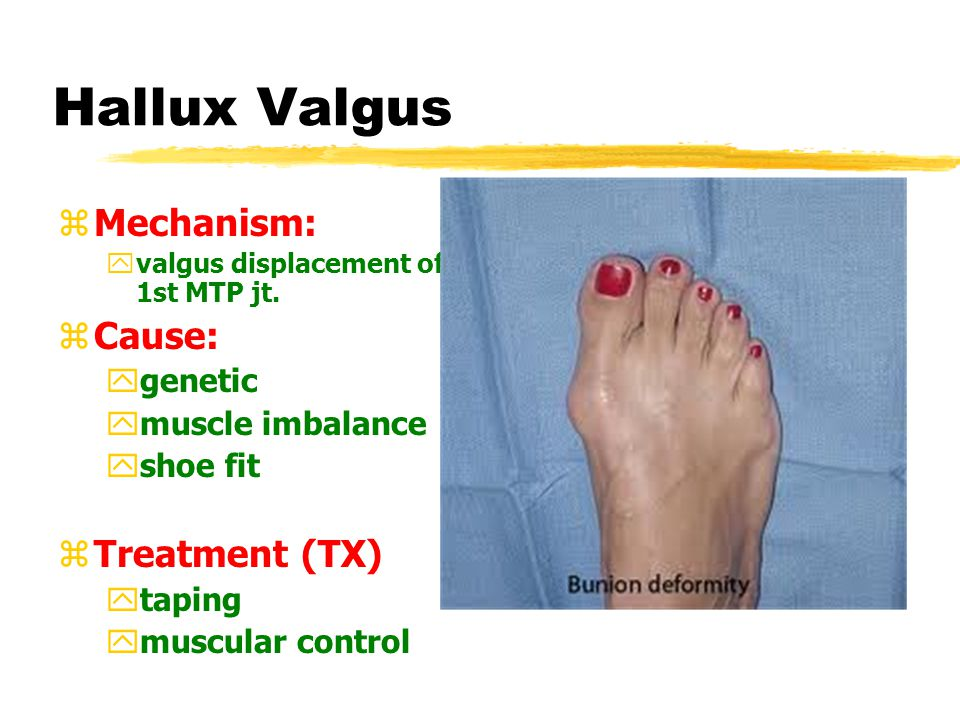 Hallux Valgus zMechanism: yvalgus displacement of 1st MTP jt.