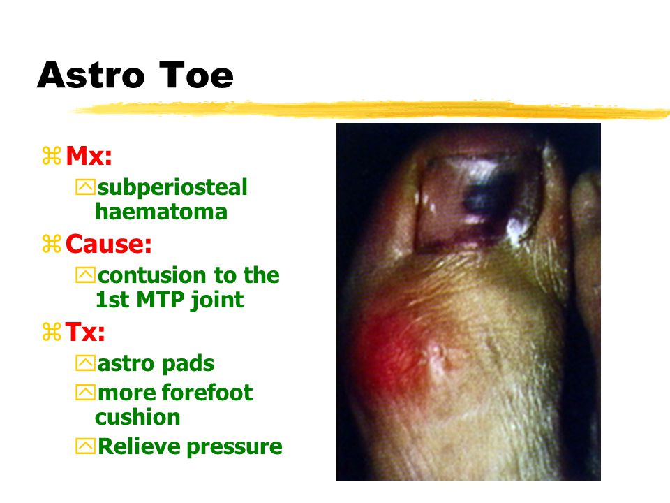 Ingrown Toe-nail Tx. 1 2