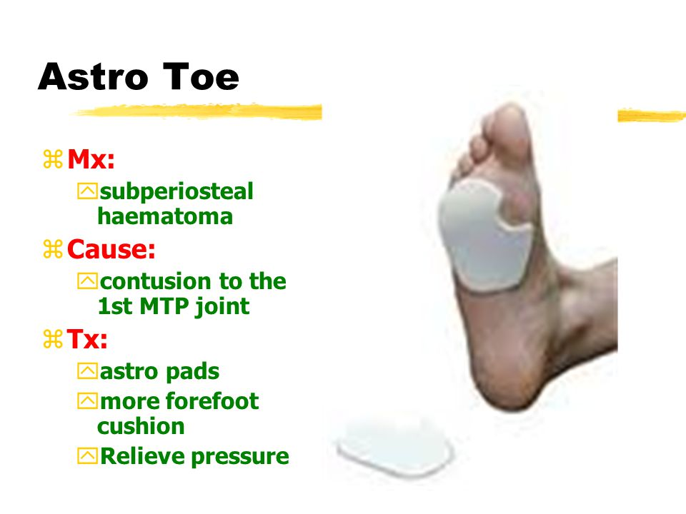 Astro Toe zMx: ysubperiosteal haematoma zCause: ycontusion to the 1st MTP joint zTx: yastro pads ymore forefoot cushion yRelieve pressure