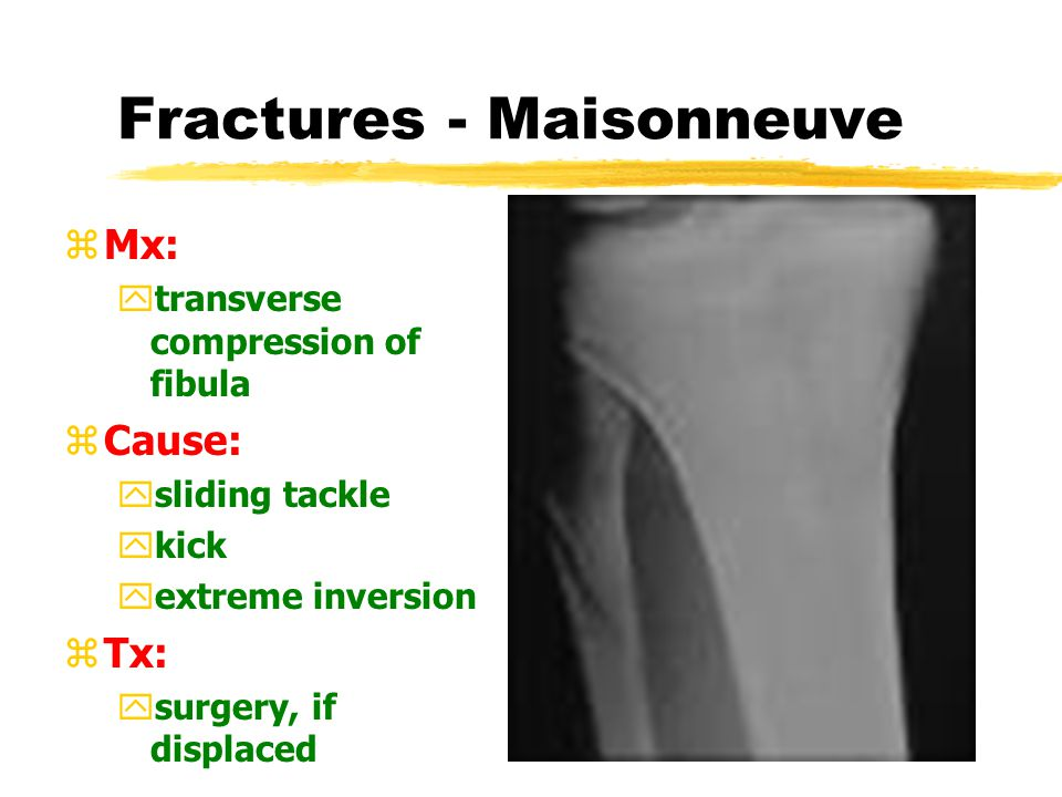 Fractures - Malleolar zMx: yavulsion ycompression zCause: yextreme inversion yextreme eversion zTx: ysurgery