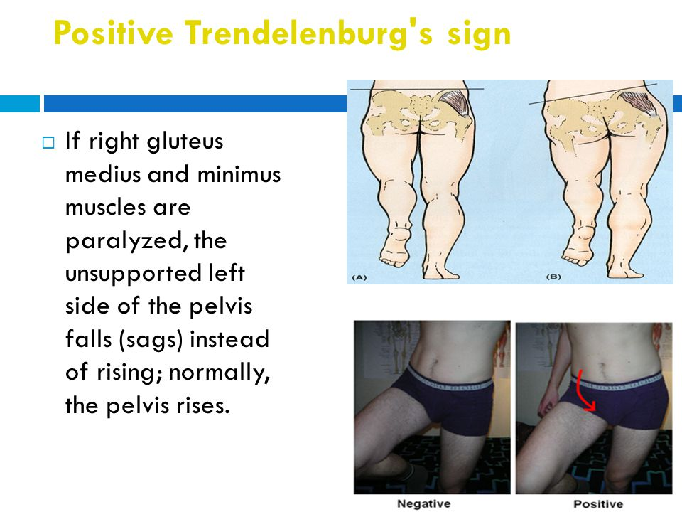 Positive Trendelenburg's sign  If right gluteus medius and minimus muscles are paralyzed, the unsupported left side of the pelvis falls (sags) instea