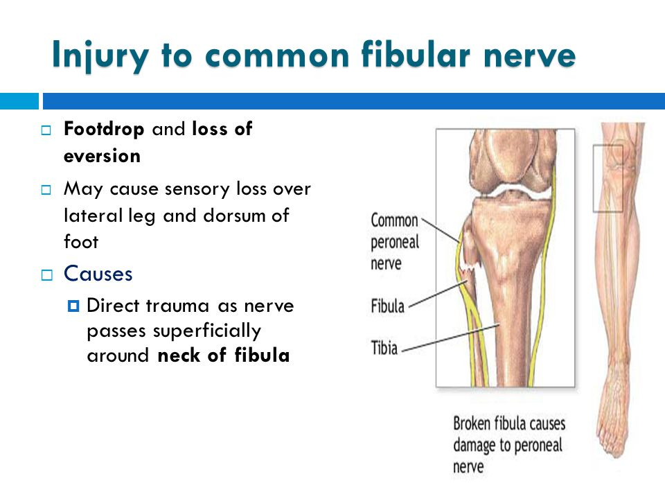  Footdrop and loss of eversion  May cause sensory loss over lateral leg and dorsum of foot  Causes  Direct trauma as nerve passes superficially ar