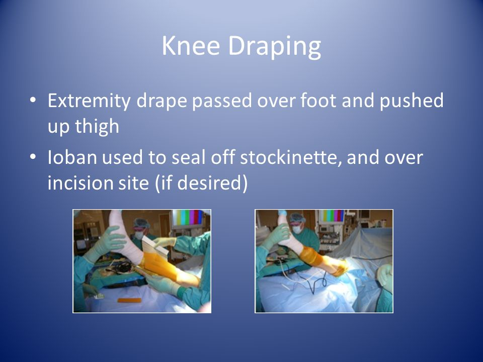 Extremity drape passed over foot and pushed up thigh Ioban used to seal off stockinette, and over incision site (if desired) Knee Draping