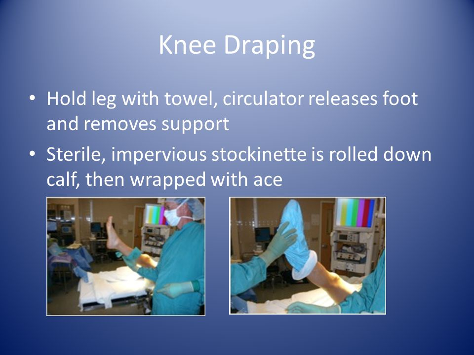 Knee Draping Two layers of drapes are used U drape from foot to just below tourniquet