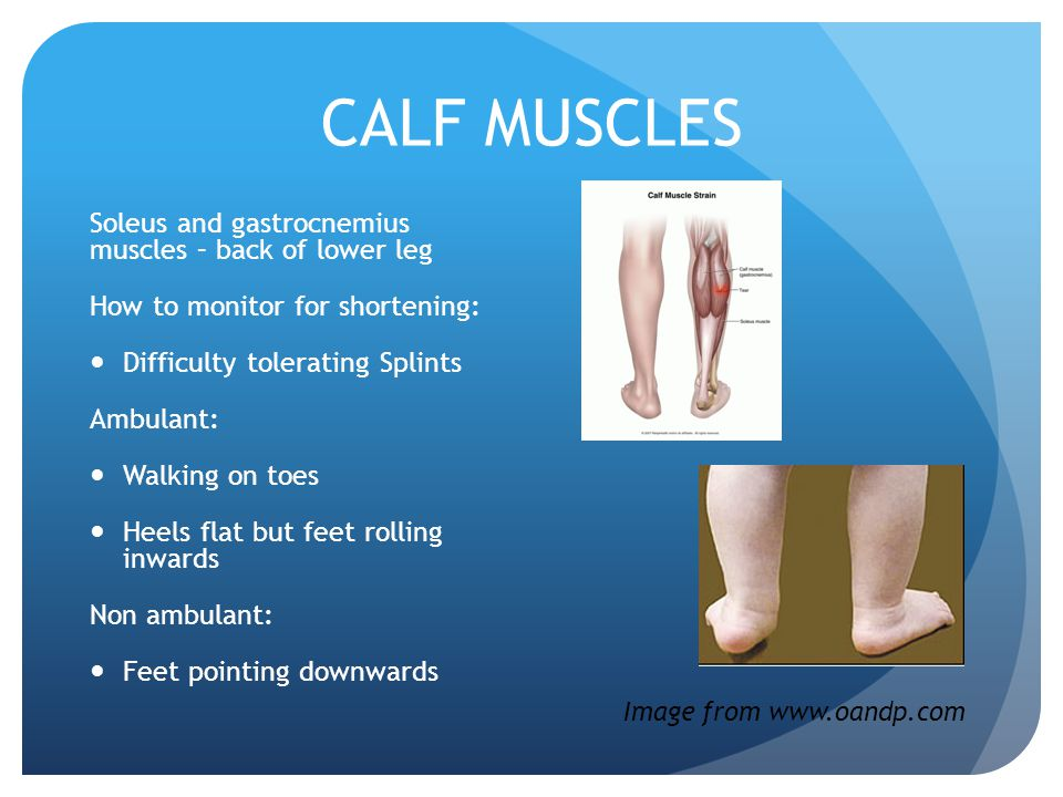 CALF MUSCLES Soleus and gastrocnemius muscles – back of lower leg How to monitor for shortening: Difficulty tolerating Splints Ambulant: Walking on toes Heels flat but feet rolling inwards Non ambulant: Feet pointing downwards Image from