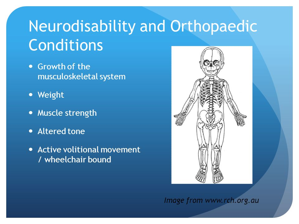 Neurodisability and Orthopaedic Conditions Growth of the musculoskeletal system Weight Muscle strength Altered tone Active volitional movement / wheelchair bound Image from www.rch.org.au