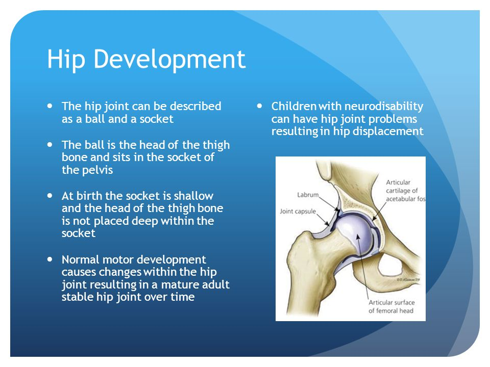 Hip Development The hip joint can be described as a ball and a socket The ball is the head of the thigh bone and sits in the socket of the pelvis At birth the socket is shallow and the head of the thigh bone is not placed deep within the socket Normal motor development causes changes within the hip joint resulting in a mature adult stable hip joint over time Children with neurodisability can have hip joint problems resulting in hip displacement
