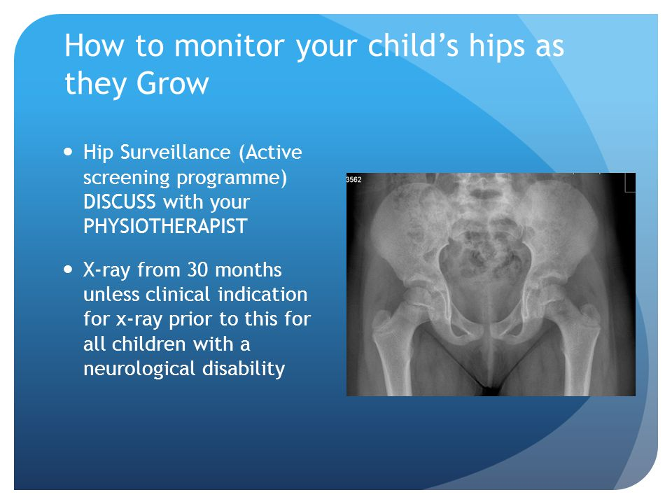 How to monitor your child's hips as they Grow Hip Surveillance (Active screening programme) DISCUSS with your PHYSIOTHERAPIST X-ray from 30 months unl