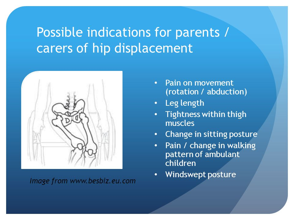 Possible indications for parents / carers of hip displacement Pain on movement (rotation / abduction) Leg length Tightness within thigh muscles Change in sitting posture Pain / change in walking pattern of ambulant children Windswept posture Image from