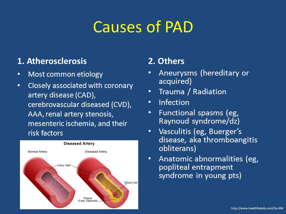 Major Risk Factors for PAD* Diabetes mellitus (OR 2.0 – 2.7) Current smoking (OR 1.4 for each 10 cig/day) Hypercholesterolemia (OR 1.2 for each 1 mmol/L elevation in cholesterol Lipoprotein A, CRP HTN (OR 1.5 for mild, 2.2 for moderate) Age > 75 yrs (OR 1.2) Decreased risk w/ higher levels of HDL * based on U.S.